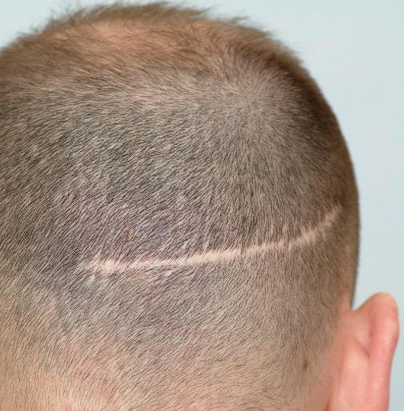 Hair Restoration Portland Oregon Neograft Portland Or