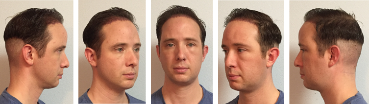 Dr Matthew Lewis Neograft Experience Dr Lewis Plastic Surgery